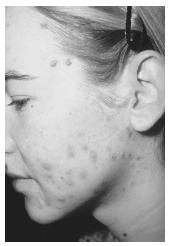 A female with untreated acne on her face. Several prescription and nonprescription drugs are used to effectively treat acne.