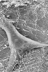 A scanning electronic micrograph of a fibroblast and collages fibers. Collagen is a major component of connective tissue.