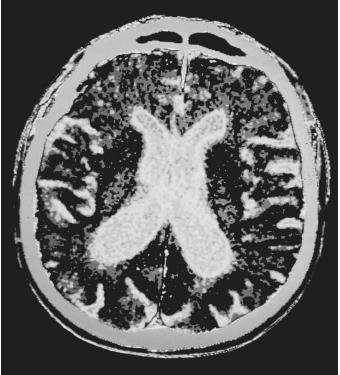 A CAT scan of a human brain with Parkinson's Disease, with visible atrophy.