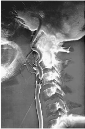 "An angiogram of the carotid artery. The darker section indicates blockage. LDL, or ""bad cholesterol,"" which at high concentrations can clog blood vessels, can be detected by the use of an angiogram."