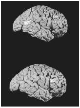 Two positron-emission tomography (PET) scans showing the brain of a depressed person (top) and a healthy person (bottom).